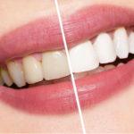 Albire dinti cu laser