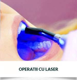 operatii cu laser